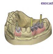 modul-implanti